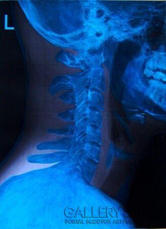 Michał Król-Blue Skull-Mieszana